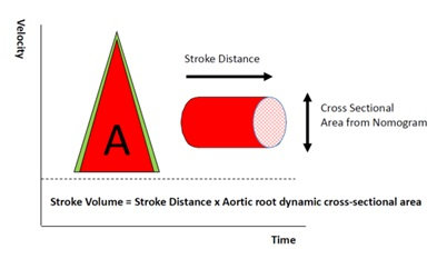 ODM+ - Cardiac Output Monitoring | Deltex Medical