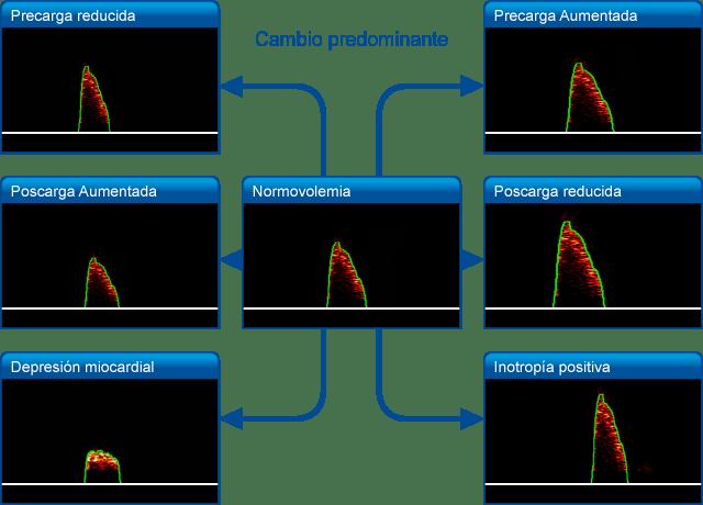 Interpretacion formas de onda