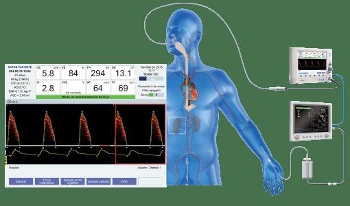 Linea arterial
