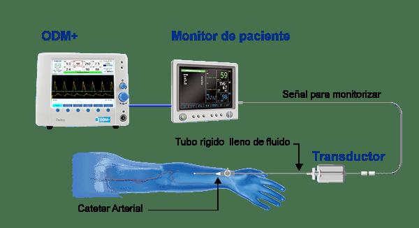 Monitorización de la presión